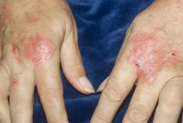 Boom dermatiti da lavoro, a rischio da medici a tabaccai