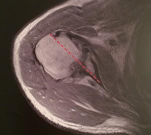 fig 10 usura della superficie articolare