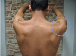 fig 7 prominenza posteriore