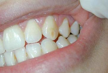 Afte e macchie sui denti sono alert per la Celiachia