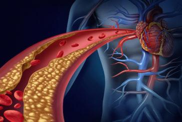 Colesterolo cattivo, l'altalena dei valori limita mente anziani