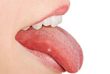 I microbi orali aggravano il cancro al colon