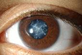 U.O. di Oculistica di Orbetello, 300 interventi di cataratta in meno di un anno