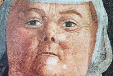 Mantegna dipinse la neurofibromatosi
