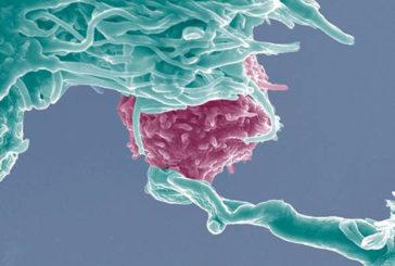 Dal 2017 in Italia cellule con dna modificato antitumori