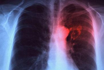 Scoperto come bloccare la crescita del tumore al polmone