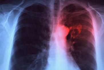 Dopo 40 anni rivoluzione nella cura al tumore al polmone