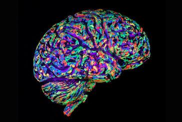 Lo sviluppo delle malattie 'in diretta' grazie a mini cervelli 3D
