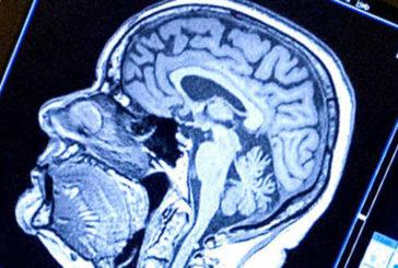 Italiani hanno scoperto un 'interruttore' dei tic, studiando la 'sindrome di Tourette'