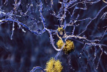 Test clinici contro l'Alzheimer con ultrasuoni focalizzati sulla testa