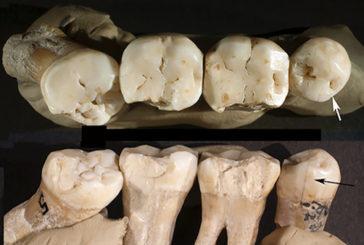 I primi dentisti della storia tra gli uomini di Neanderthal