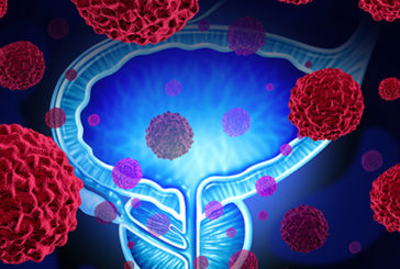 Il 37% degli italiani non ha mai sentito parlare di tumore alla vescica
