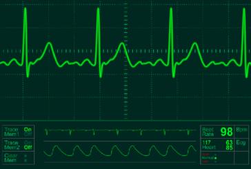 Uno scienziato Usa predice rischio infarto con elettrocardiogramma