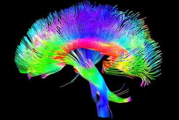 L'attività cerebrale 'prende colore' grazie ad una nuova tecnica