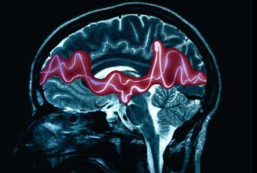 Il dispositivo che spegne le crisi epilettiche sul nascere