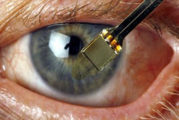 Una retina artificiale è stata impiantata su 5 pazienti non vedenti