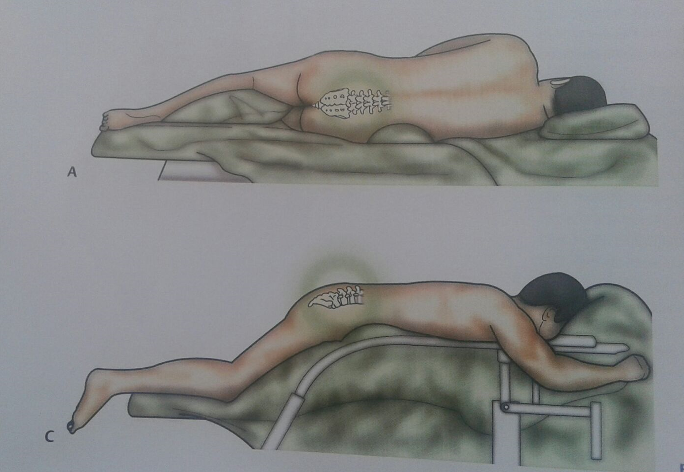 Posizione supina del paziente