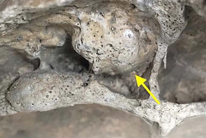 Storia e Paleopatologia del Cancro 2 - Ispezione ingrandita
