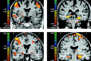 Il cervello si va semplificando con l'età