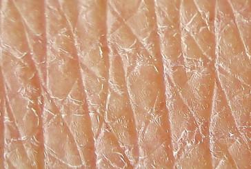E' stata brevettata la pelle artificiale sensibile al tatto