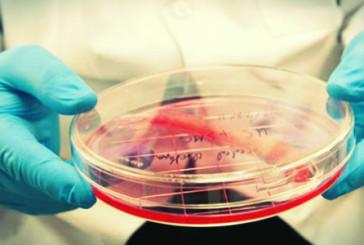 Studio linfociti T su nuove terapie per Sclerosi Multipla