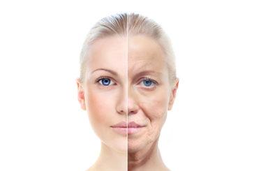 Il viso sembra più vecchio quando consumiamo troppo zucchero