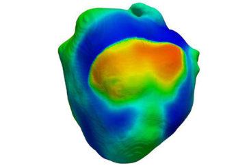Il primo cuore virtuale che batte sul computer