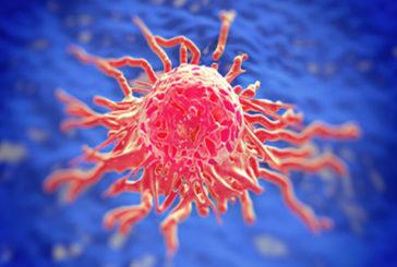 Tumori: mieloma, arriva 'killer seriale' cellule cancerose