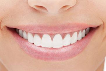 Identificate le origini del sorriso