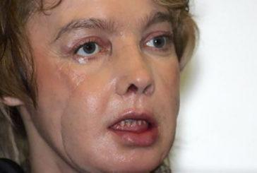 Francia, morta a 49 anni la prima donna con trapianto del viso