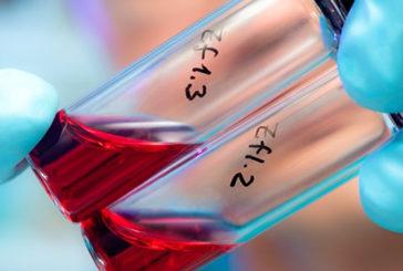 Aids, in Italia 15% infetti non lo sa e 50% diagnosi tardivo