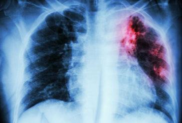 Nuove molecole per battere la tubercolosi