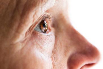 Nuova tecnica non invasiva distingue Alzheimer da demenza