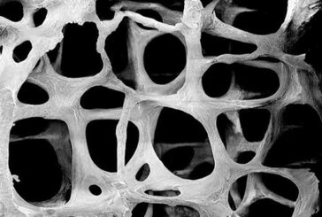 Un nanomateriale intelligente che curerà l'osteoporosi