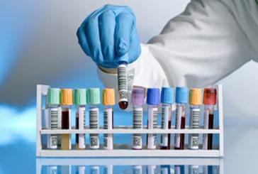 Esami di laboratorio, 3 su 10 inutili o dannosi