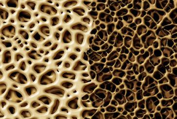 Osteoporosi, scoperta molecola che stimola crescita ossa