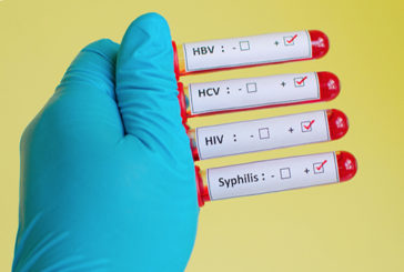 Quasi 3 ragazzi su 10 non temono infezioni sessuali