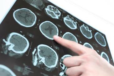 """Identificata proteina """"bersaglio"""" per il morbo di Parkinson"""