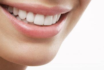 Sorriso specchio salute, ma bastano 6 denti per metterla a rischio