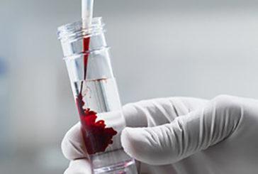 Emofilia, meno iniezioni e più cure su misura