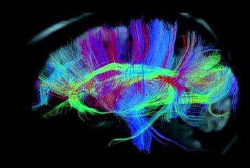 Osservata per la prima volta l'impronta dei sogni nel cervello