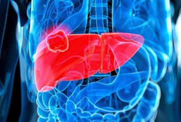 Tumore fegato, l'immunoterapia aumenta la sopravvivenza dei malati