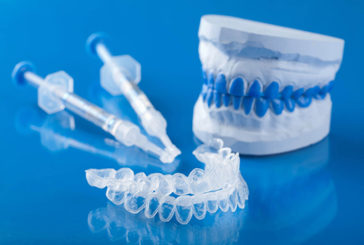 Sbiancamento denti, in Italia un business da un miliardo l'anno