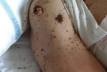 Un ospedale di Napoli infestato dalle formiche, denuncia dei Verdi