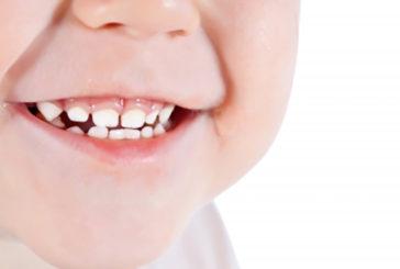Digrignare i denti nel sonno è uno dei sintomi delle vittime di bullismo