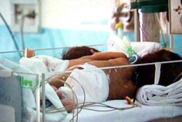 Bergamo, nate due gemelline siamesi all'ospedale Papa Giovanni XXIII