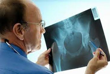120 mila casi all'anno di fratture del femore negli over 65