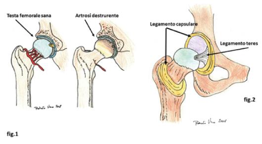 Protesi dell'anca e del ginocchio