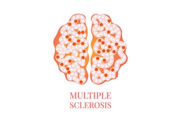 Giornata Sclerosi Multipla: la SIN fa il punto sulle opportunità terapeutiche