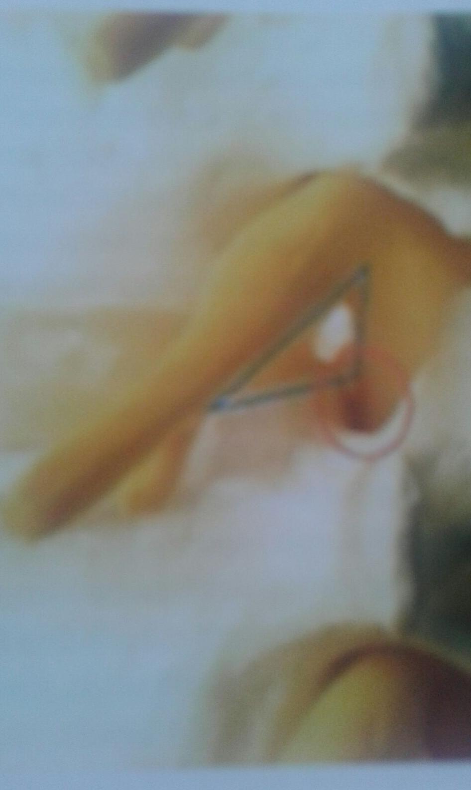Triangolo di sicurezza di kambin